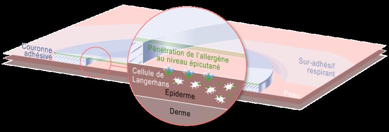 DBV Technologies a mis au point le patch Viaskin pour les allergies alimentaires